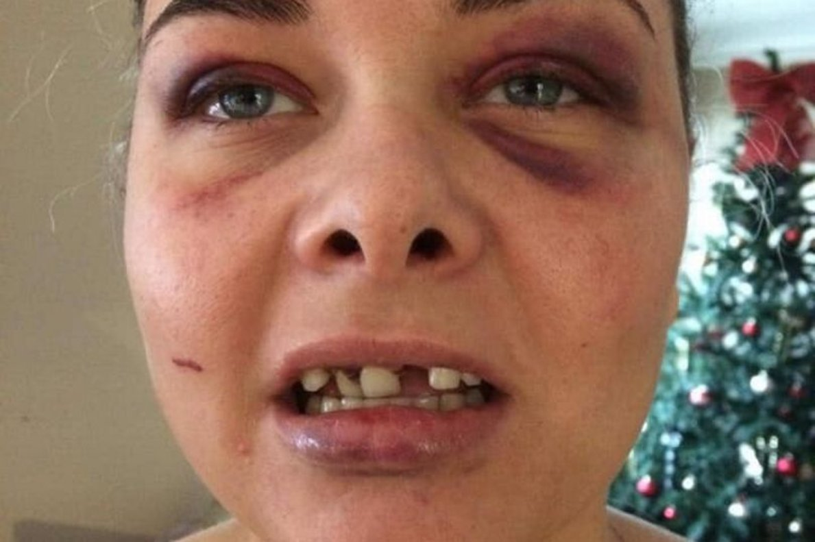 El estremecedor relato de una mujer que recibió una paliza de su ex tras cambiar el perfil de Facebook