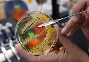 La bacteria de la salmonela, en un laboratorio de Estados Unidos.