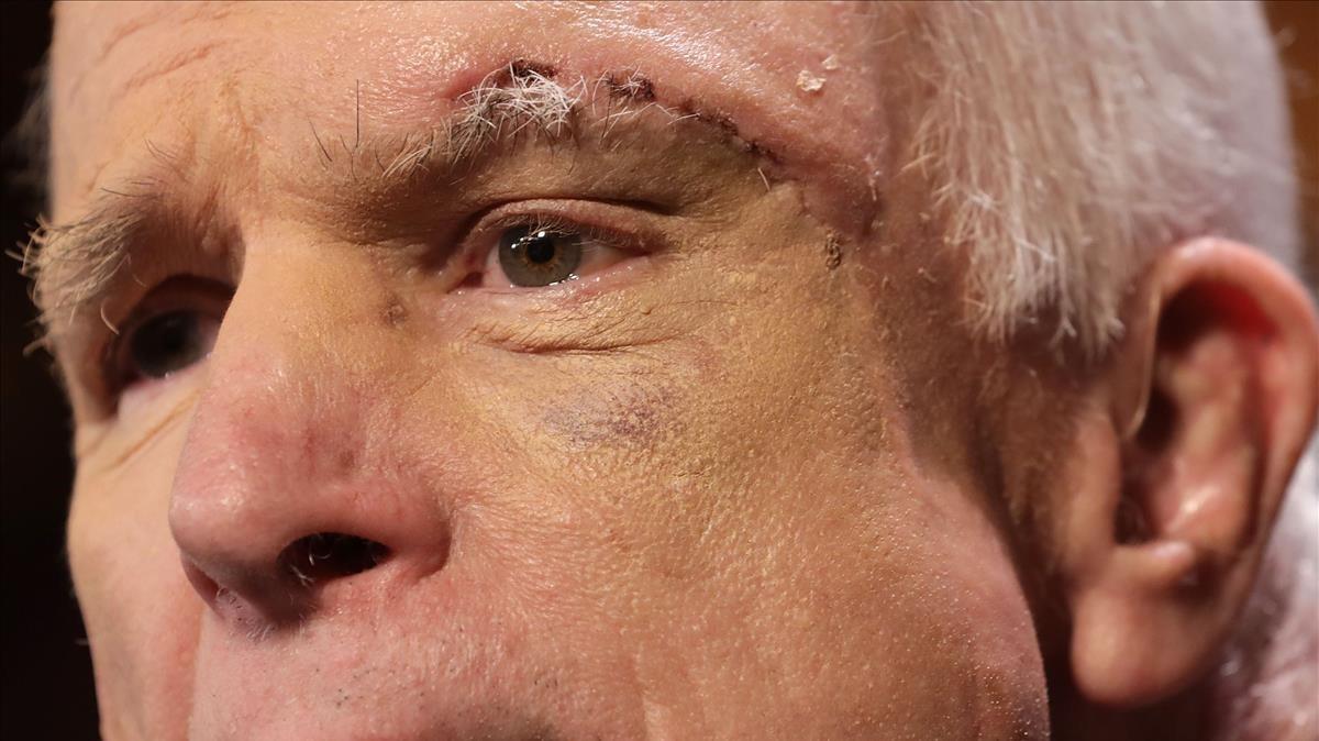 John McCain muestra las huellas de la enfermedad.