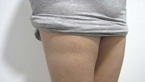 Marcas en los muslos provocadas por lipoatrofia semicircular.