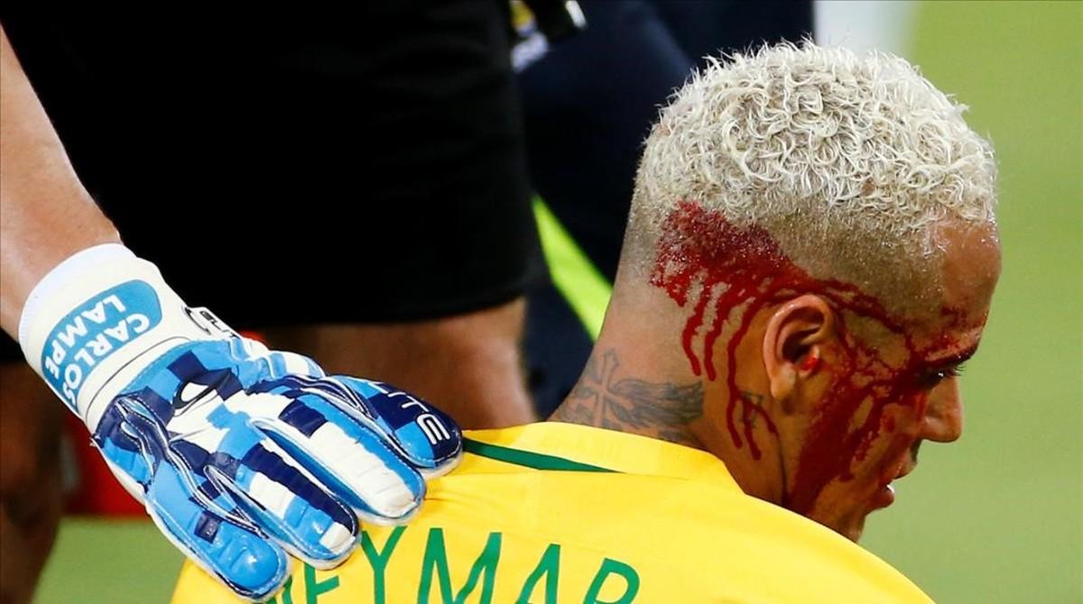 Neymar, tras recibir el codazo ante Bolivia.