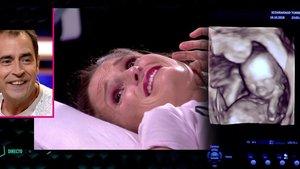 Insólito momento en 'GH VIP': Verdeliss conoce el sexo de su bebé en directo