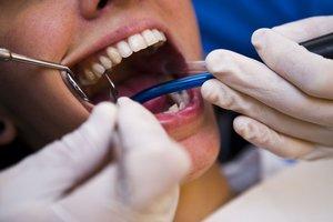 En Estados Unidos, el 27 % de los adultos presentan caries dentales que no han sido tratadas.