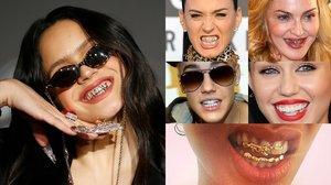 Rosalía i el bling-bling dental