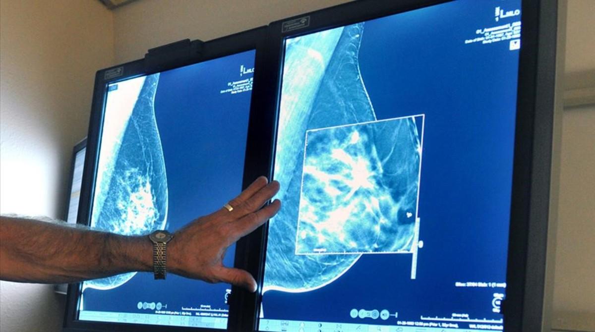 Imágenes de ecografías de senos.