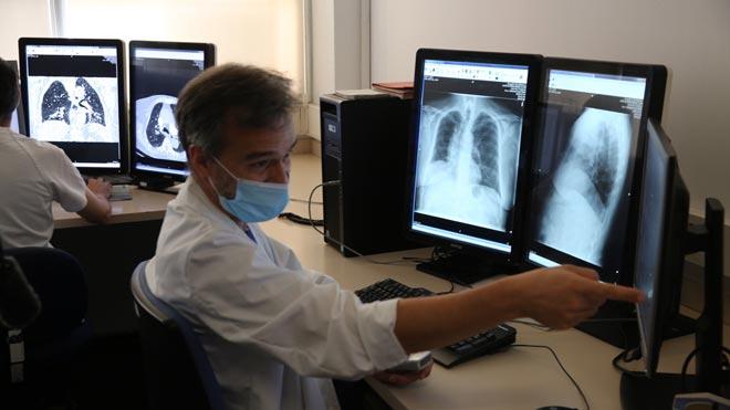 L'Hospital Vall d'Hebron prova diagnosticar el coronavirus amb intel·ligència artificial