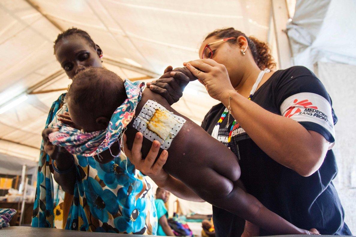 El vivax es menos virulento que el falciparum, el parásito que causa el tipo de paludismo más mortal.