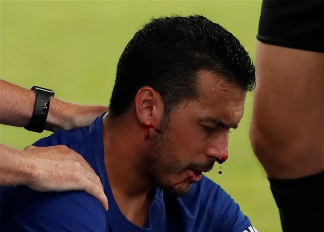 """Pedro sufre """"fracturas múltiples"""" en la cara"""