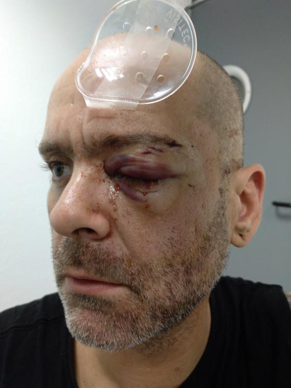 Ramón Gómez, tras ser herido por un agente de los Mossos en un desalojo en LHospitalet