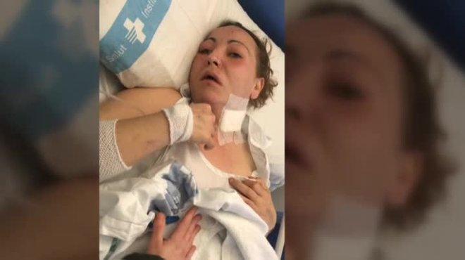 Su pareja la hirió en el cuello y luego la tiró, presuntamente, por el balcón de un tercer piso. La pelea comenzó porque ella lo había despertado a las tres de la tarde.