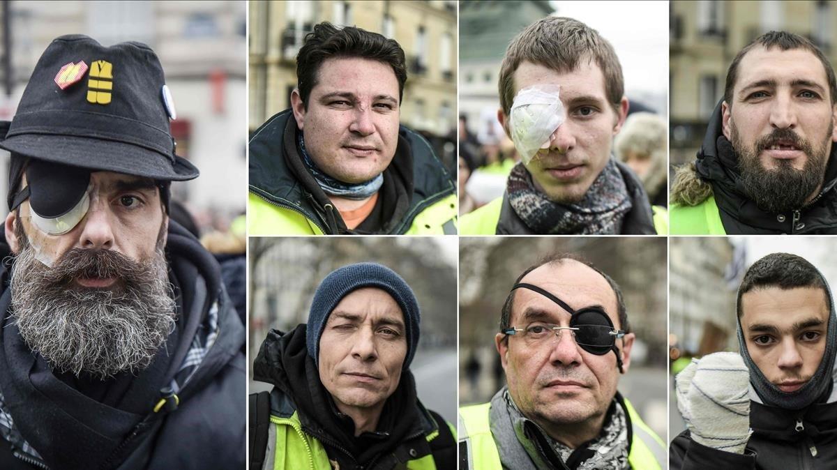 Algunos de los manifestantes 'chalecos amarillos' que acusan a la policía francesa de sus heridas.