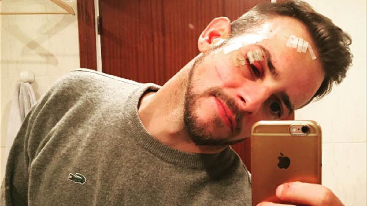 El exconcursante de OT 1, Àlex Casademunt, se hace un selfi con su herida.