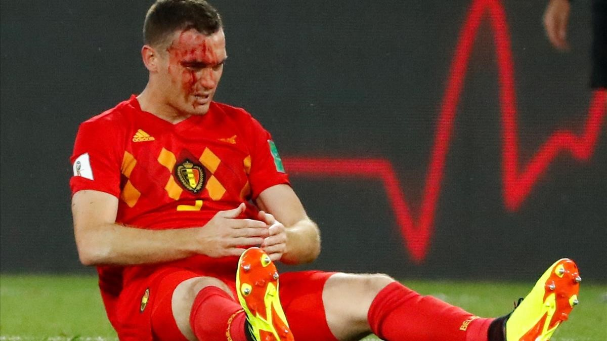 Vermaelen sangra tras una jugada en el partido ante Inglaterra. / REUTERS / FABRIZIO BENSCH