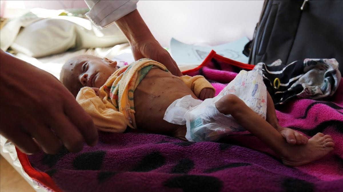 Un niño que sufre de desnutrición recibe tratamiento en un hospital de Saná, el 24 de noviembre.