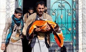 Alí al-Bahshani, abuelo de los gemelos siameses, traslada su cadáver a la salida de la mezquita de Sanaa donde se realizó el funeral.