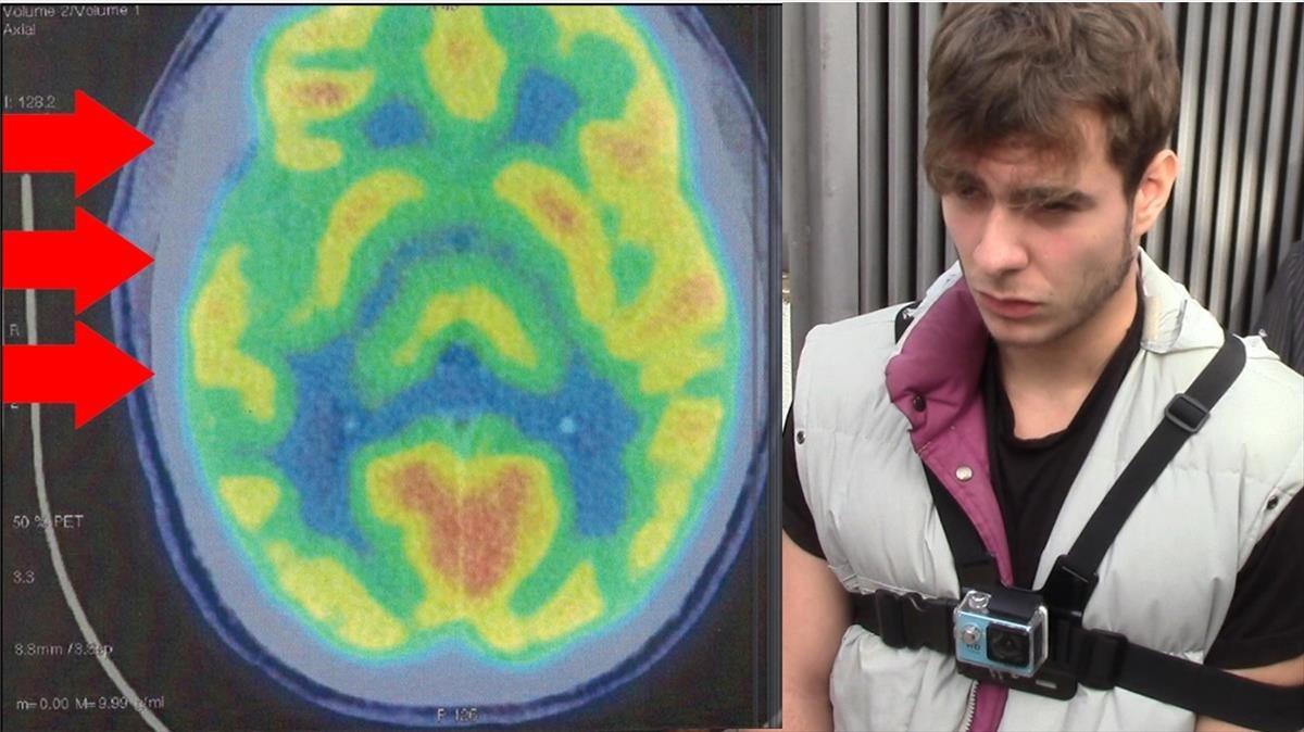 Imágenes de las pruebas neurológicas practicadas al asesino Patrick Nogueira.