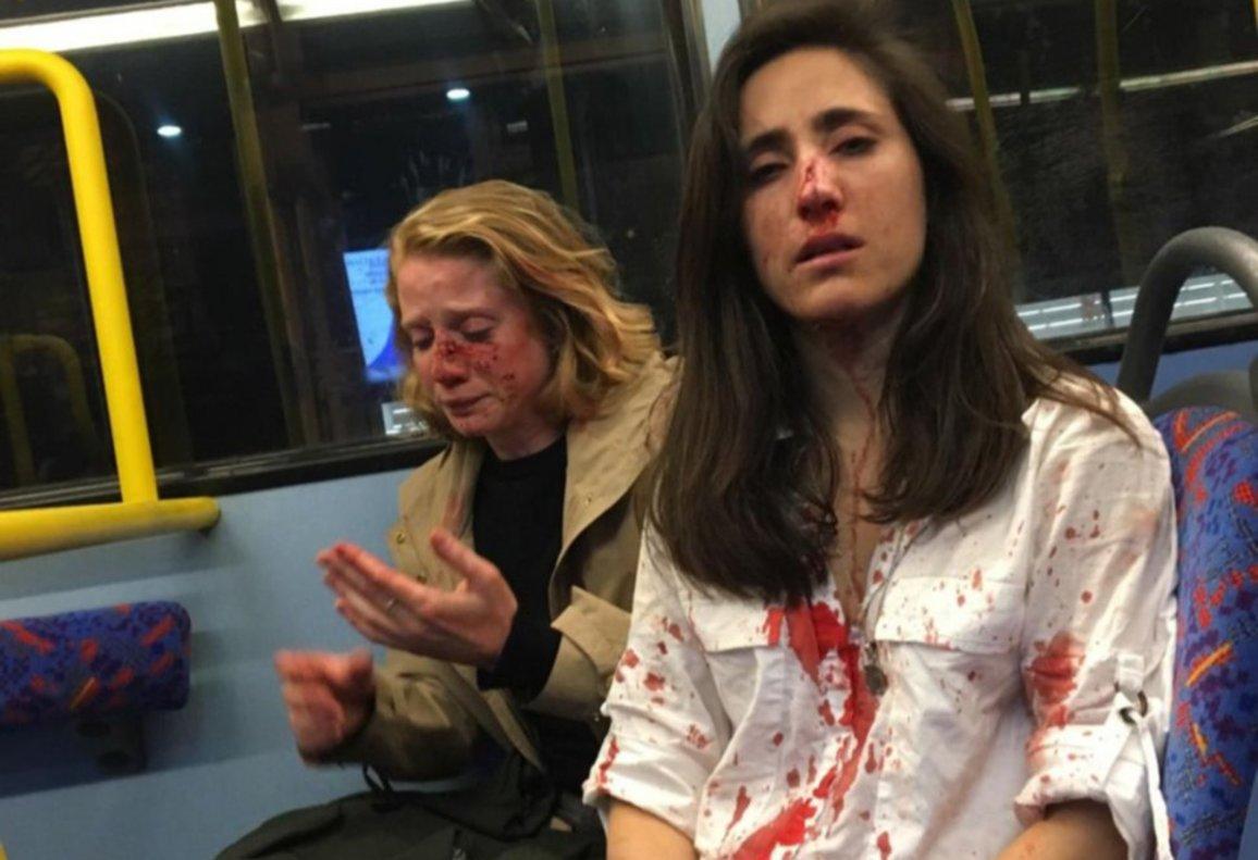 Melania Geymonat y su pareja, tras ser agredidas en un autobús en Londres.