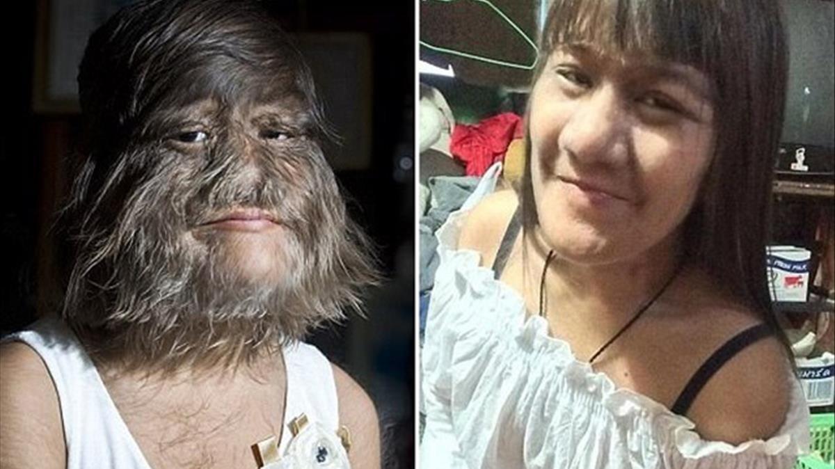 Supatra Natty Susuphan, antes de afeitarse y después.