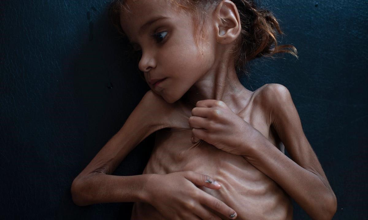 Amal Hussain, la niña yemeníde siete añosqueha fallecido por desnutrición.