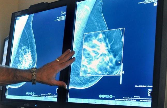 Mamografías para detectar tumores de mama.