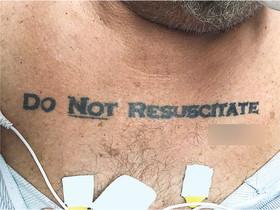 Un tatuatge de 'no ressuscitar' obre un debat mèdic