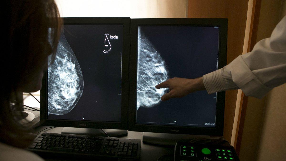 Imagen de archivo de una mamografía en 3D, que permite mejorar la detección del cáncer de mama.