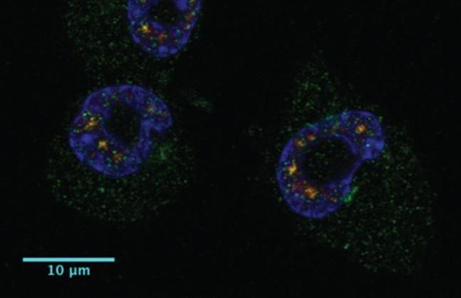 Cuatro células tumorales, con la localización de la proteína CPEB1 en color verde.