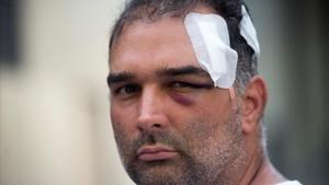 José Bravo, el turista estadounidense de origen cubano que fue agredido el miércoles por un grupo de manteros.