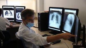 Presentación del programa de inteligencia artificial con un escáner o TAC para diagnosticar el coronavirus, en el Hospital Vall d'Hebron de Barcelona.
