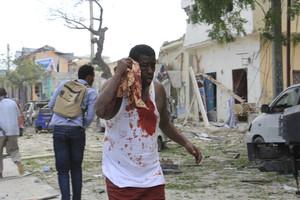 Un herido en el ataque al hotel Dayah de Mogadiscio.