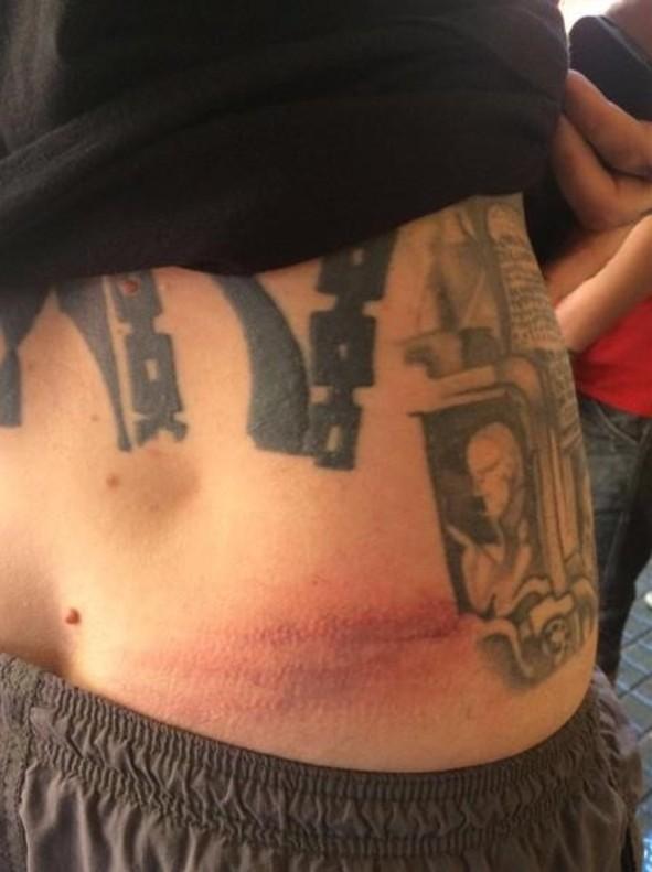 Foto que el propio Garganté colgó en Twitter con la herida que, presuntamente, le causó el mosso ahora denunciado.