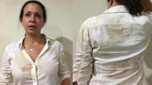 Machado se encontraba en la localidad de Upata cuando fue abordada por sujetos que la atacaron a golpes y empujones.