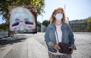 Conchi P., en el lugar donde fue atacada, junto al Sot del Migdia, en Montjuïc. En la foto pequeña, las lesiones que sufrió en la cara.