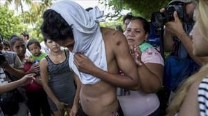 Un joven muestra golpes tras ser detenido en el marco de las protestas.