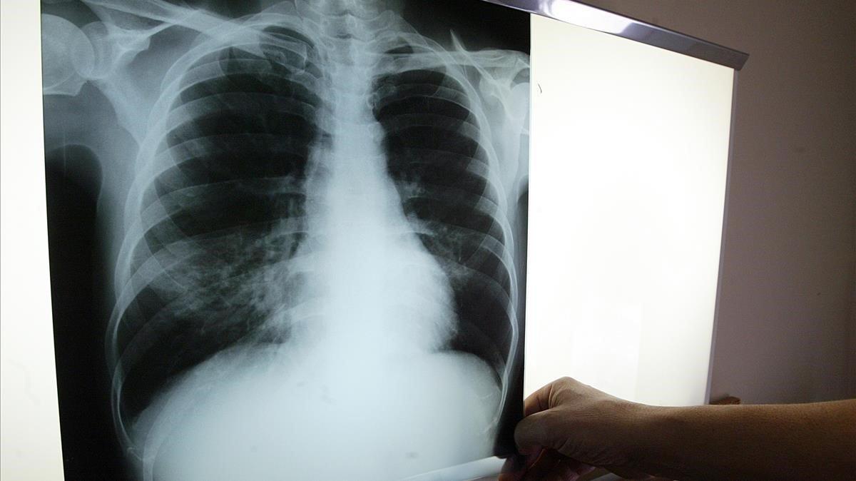 Radiografía de un enfermo de tuberculosis.
