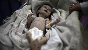 El pequeño Sahar Dofdaa poco antes de morir por desnutrición.