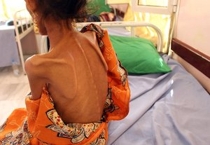 Una niña de 12 años con altos niveles de desnutrición en Yemen.