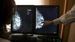 Unos médicos analizan unas mamas en una pantalla.