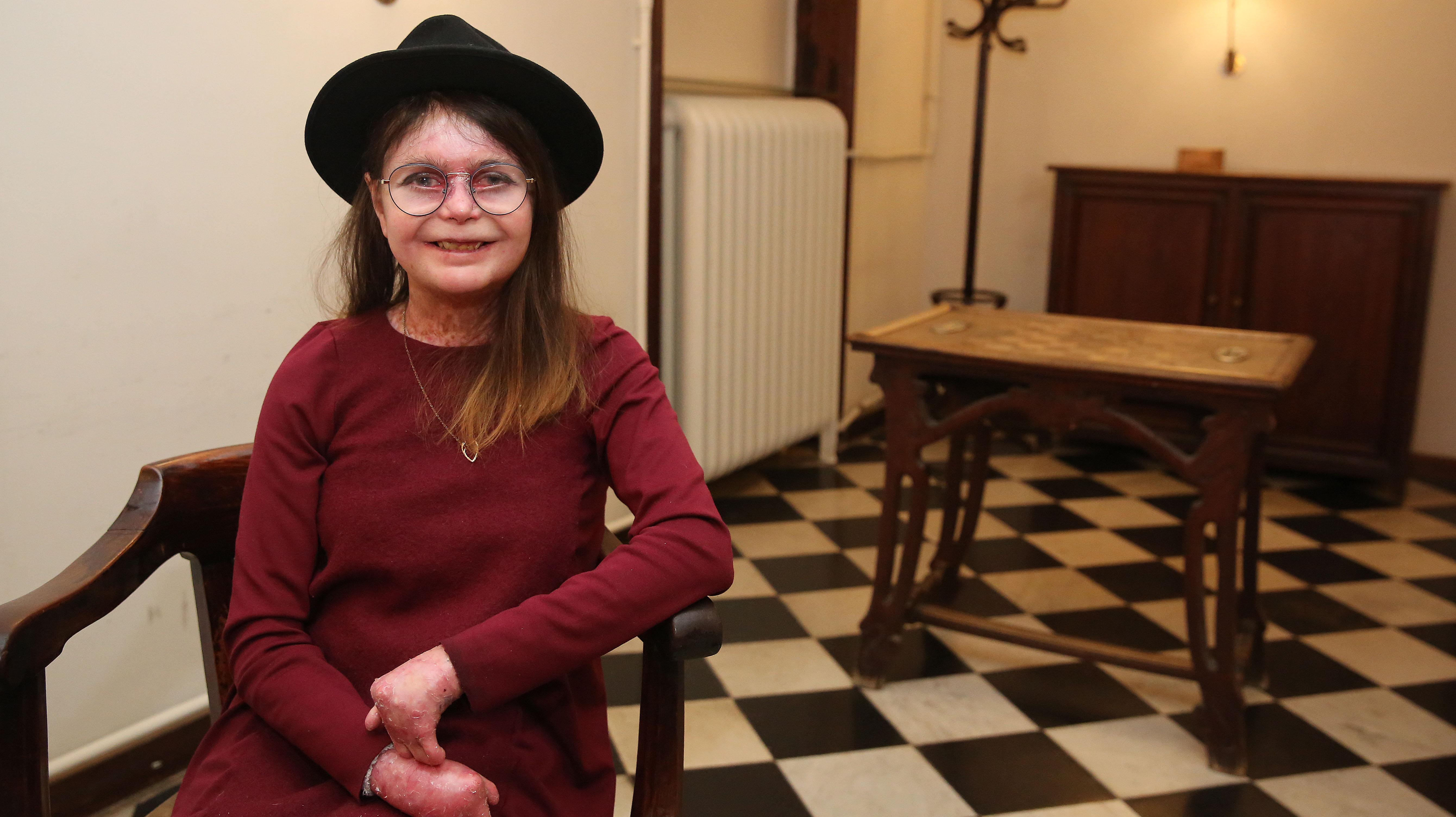 Entrevista con Nina Roma, catalana de 26 años años y una de las mil personas en Españaque padecen la enfermedad rara llamada 'piel de mariposa'.
