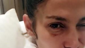 Jennifer Lopez, con el ojo morado.