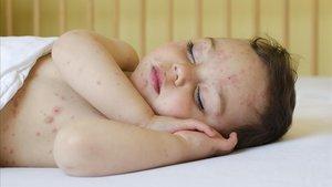 Un bebé con impétigo.
