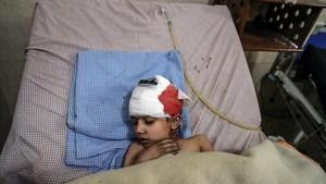 Un niño herido en los bombardeos de las fuerzas leales a Damascorecibe tratamientoen un hospital deDuma.