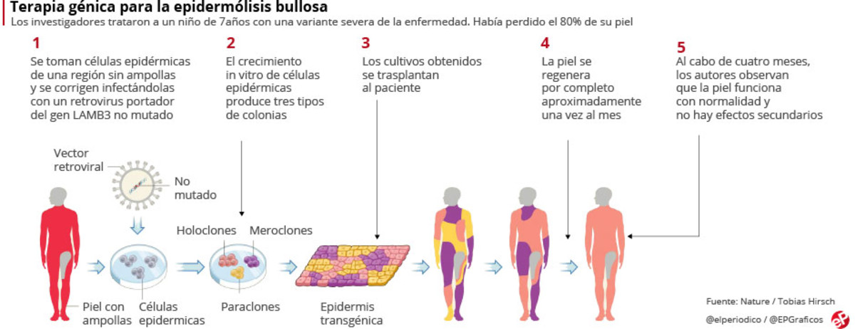 Una terapia génica cura a un niño aquejado de una grave enfermedad de la piel