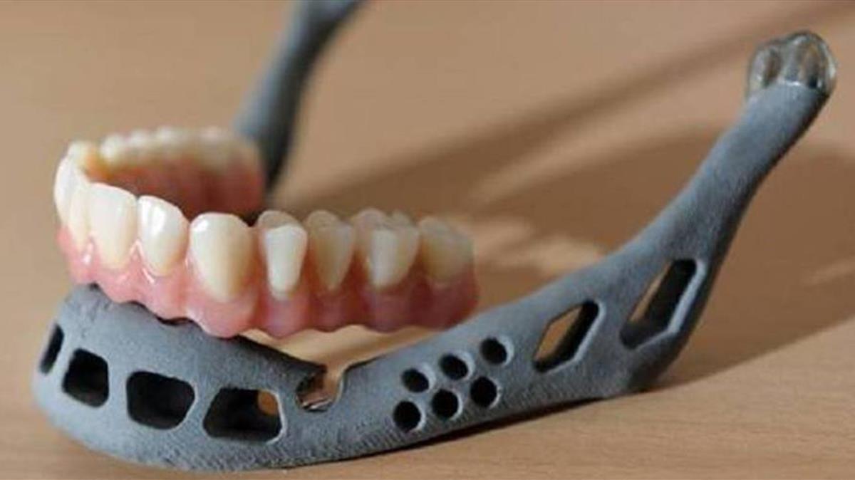 Implantada una mandíbula creada amb una impressora 3D de titani a un nen xinès