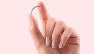 El muelle anticonceptivo Essure, retirado ya por Bayer.