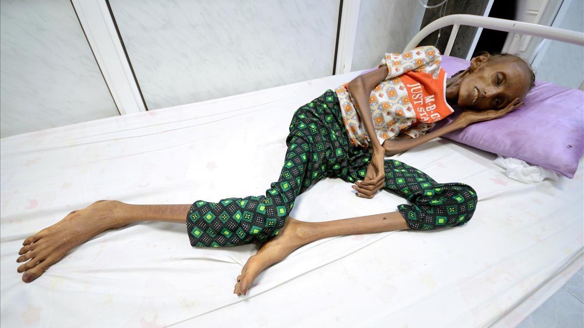 La joven Saida Ahmed Baghili, de 18 años, es atendida en el hospital de Al-Thawra, de la ciudad yemení de Hodeidah,de su severa malnutrición.