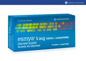 Alerta por posible daño hepático ocasionado por un fármaco para miomas