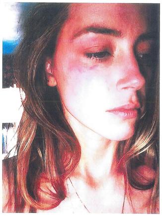 Amber Heard, con las heridas en el rostro que le causó Johnny Depp al lanzarle un teléfono.