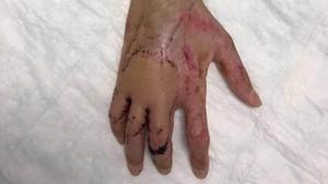 Aquesta és la mà catastròfica de Bruno Hortelano