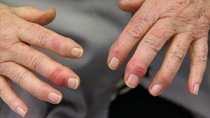 Una mujer muestra los molestos sabañones que le han aparecido este invierno en las manos.